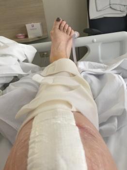 knee in hospital