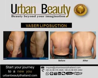 Liposuction-Hi-def-bangkok-cosmetic-surgery