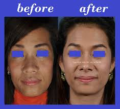 plastic surgery 1